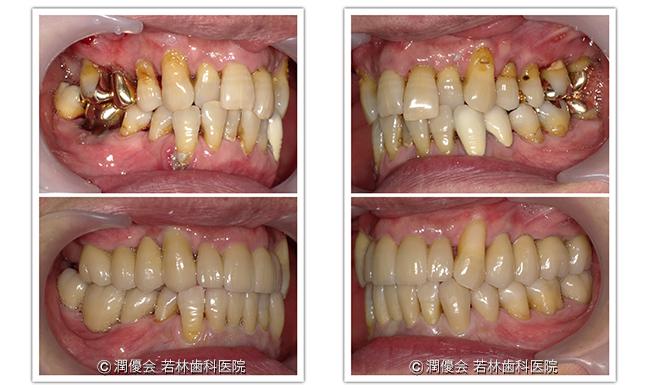 施術前後の比較写真2