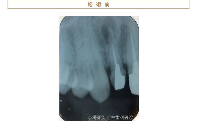施術前の口腔内写真