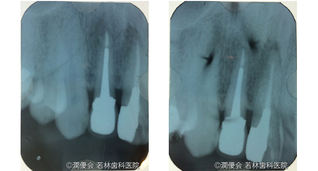 施術後の口腔内写真2