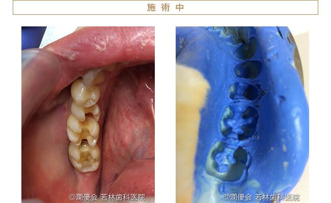 施術中の口腔内写真