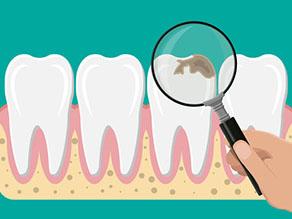 虫歯が痛い女性